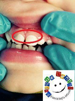 ¿Son normales las manchas en los dientes de nuestros hijos?